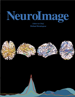 NeuroImage Cover